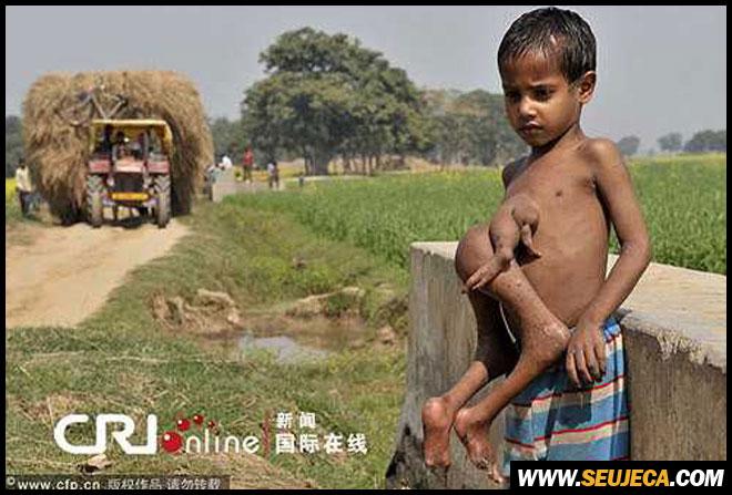 Menino indiano nasceu com gêmeo parasita